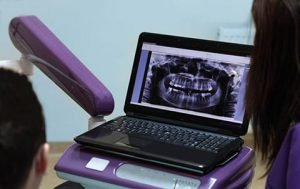 Precision-Dental-Dental-Software-Dentist-Brisbane