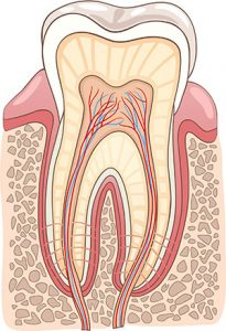 Root-Canal-Precision-Dental-Fortitude-Valley