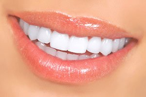 Composite Resin Veneers Fortitude Valley