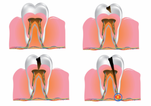 Dental Abscess Treatment Fortitude Valley