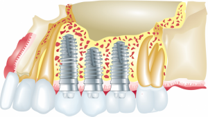 Dental Implants fortitude valley