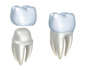 Lost Dental Crown or Inlay/Onlay Fortitude Valley