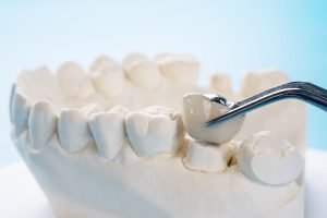 How-Long-Do-Dental-Crowns-Last