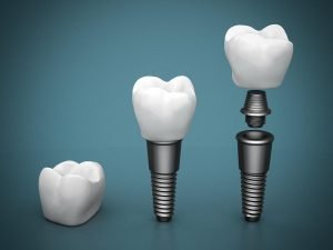 Modern Dental Implants at Precision Dental in Fortitude Valley