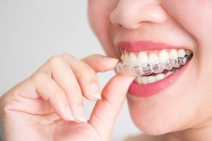 Invisalign SmileView Fortitude Valley